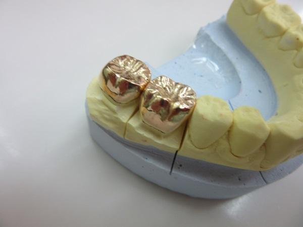 銀歯より金歯